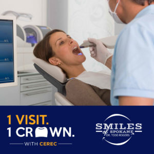 Cerec-One-Day-Crowns