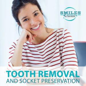 Smiles-of-Spokane-Socket-Preservation