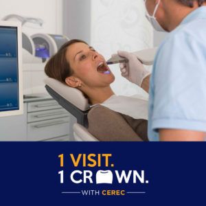 Cerec One Day Crowns