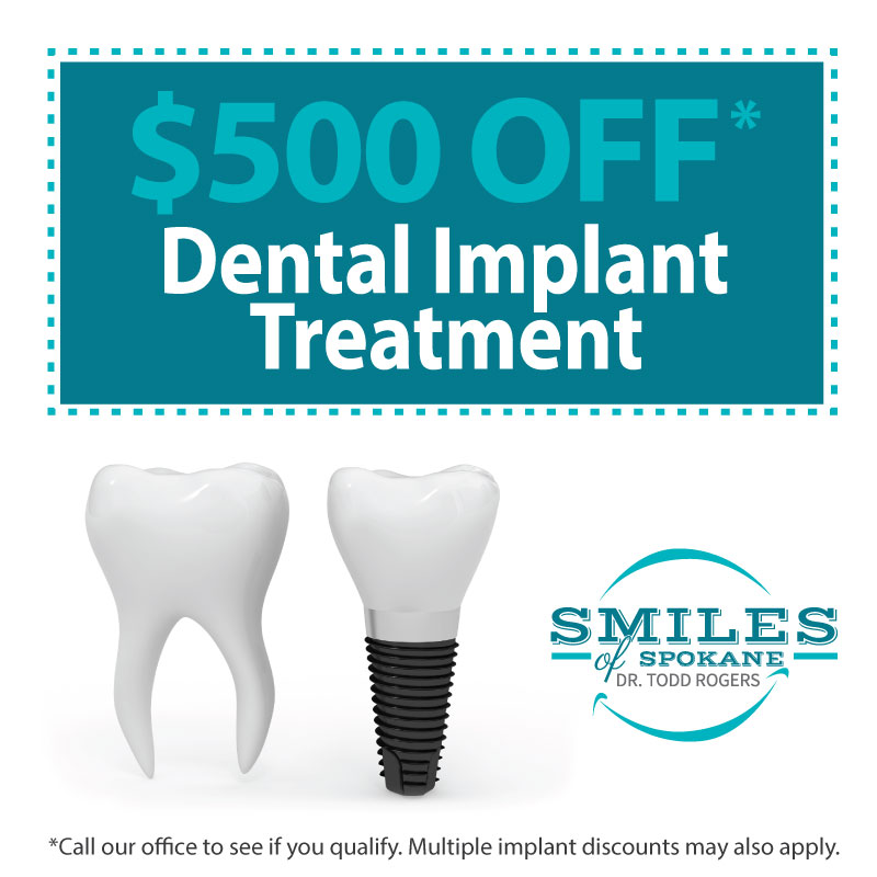 SOS-Dental-Implants