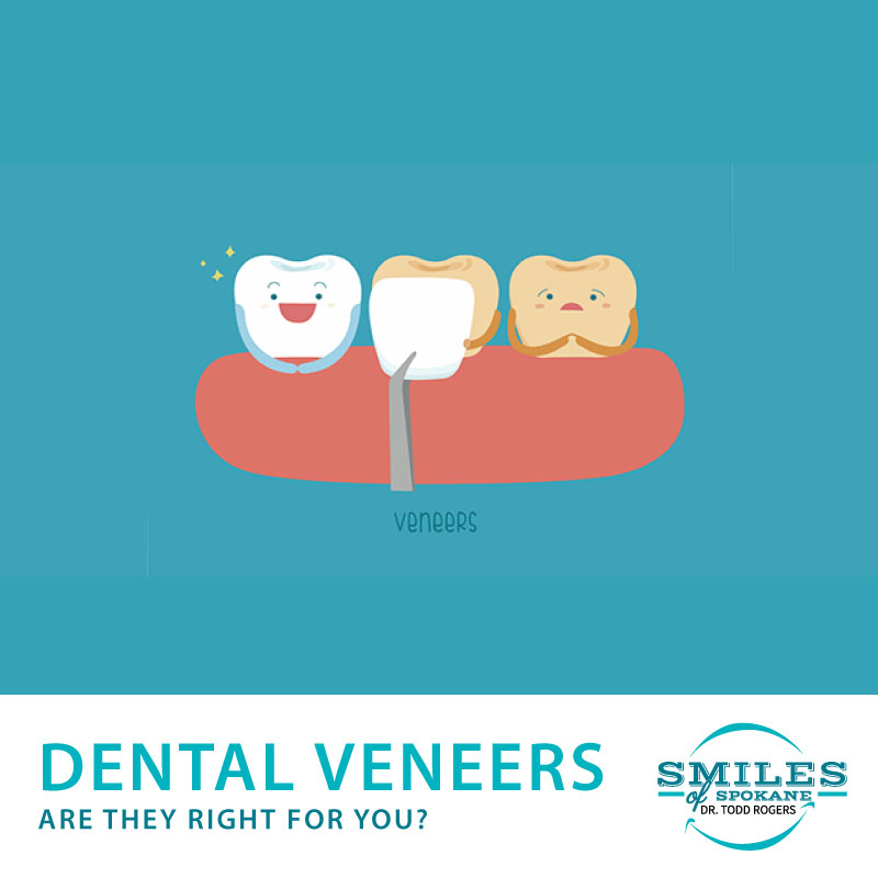 Dental Venners. Are they right for you?