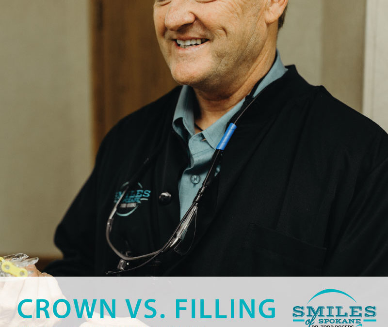 Crowns vs. Fillings