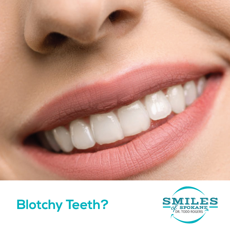 Blotchy Teeth Solutions