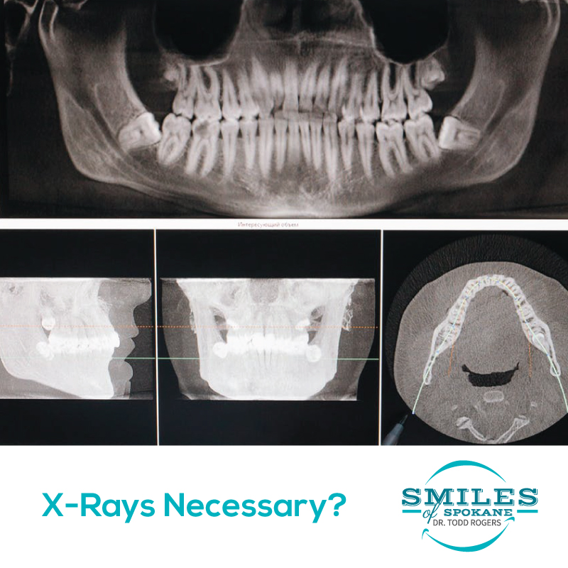 Are Dental X-Rays Necessary?